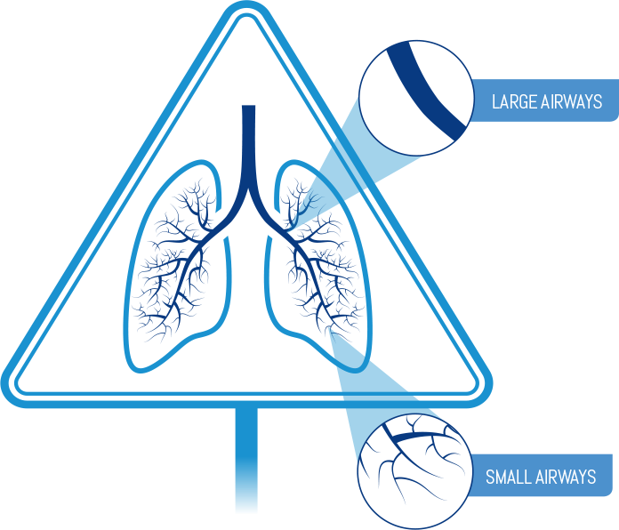 Diagram showing distinction between large and small airways